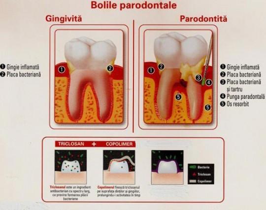 boala-parodontala-migali-dental-clinic-iasi