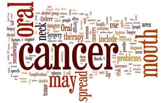 cancerul-oral-migali-dental-clinic-iasi
