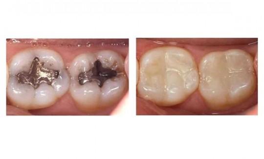 obturatii-de-amalgam-migali-dental-clinic-iasi