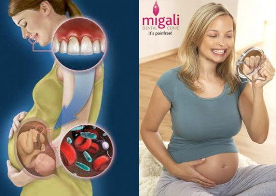 sangerari-gingivale-migali-dental-clinic