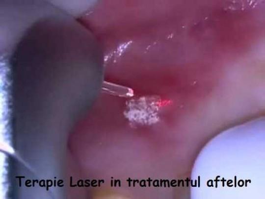 tratarea-aftelor-migali-dental-clinic