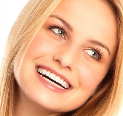 Breckets-safir-migali-dental-clinic