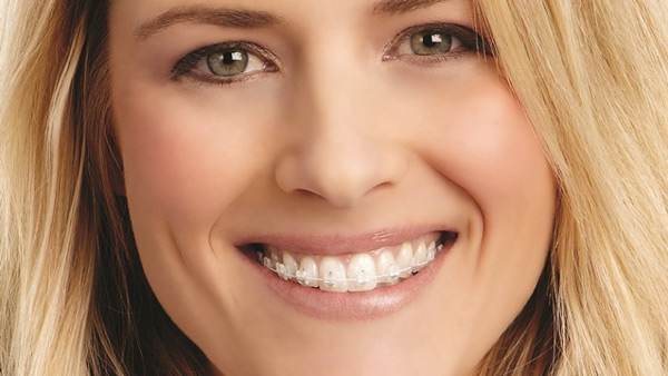 aparat-dentar-safir-migali-dental-clinic