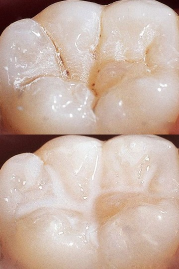 Sigiliare-dentara-Clinica-Stomatologica-Migali-compressor