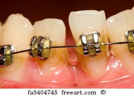 Poza-10-Igiena-in-tratamentul-ortodontic