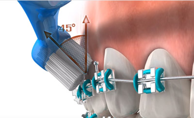 Poza-6-Igiena-in-tratamentul-ortodontic