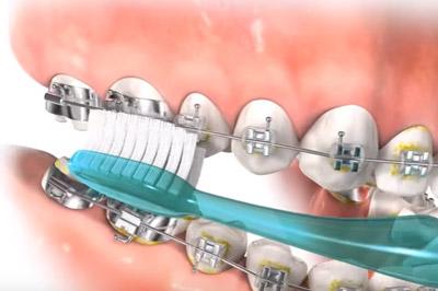 Poza-8-Igiena-in-tratamentul-ortodontic