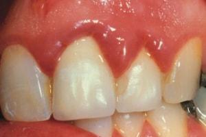 Poza-9-Igiena-in-tratamentul-ortodontic