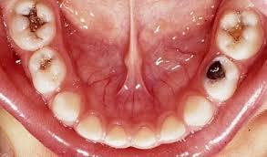 Caria dintilor de lapte Migali Dental Clinic