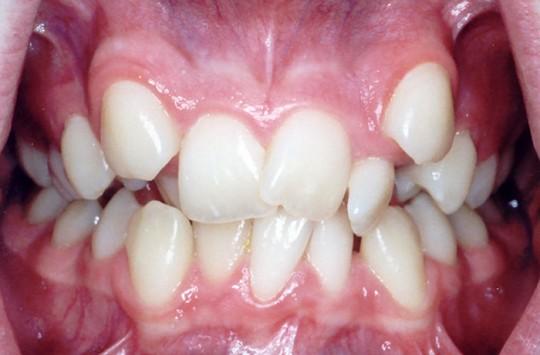 Poza 1 pierderea dintilor - Migali Dental Clinic