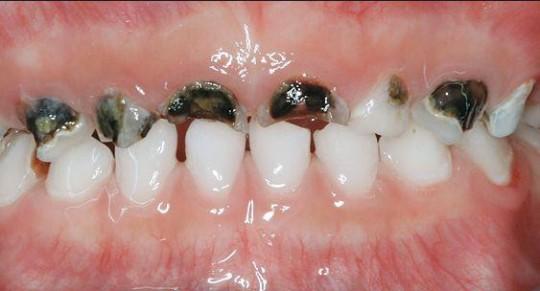 cariile rampante - Migali Dental Clinic
