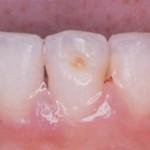 poza 2 traumatisme - dinti de lapte Migali Dental Clinic