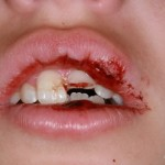 traumatisme - dinti de lapte Migali Dental Clinic